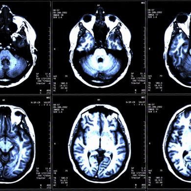 Advancements in the Treatment of Epilepsy
