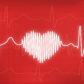 Heart Attack vs. Cardiac Arrest