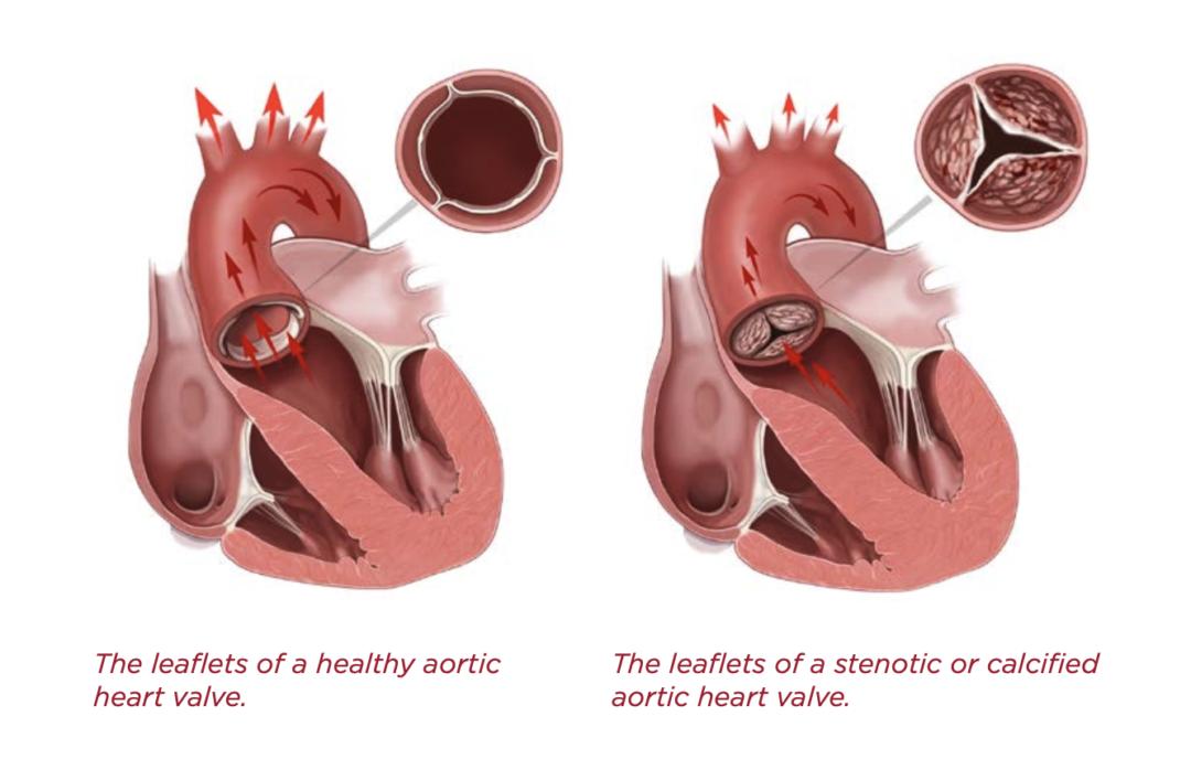 Aortic stenosis illustration
